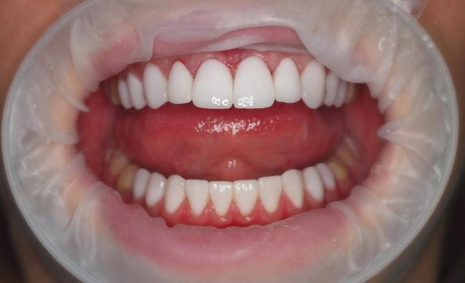 Косметический стоматолог